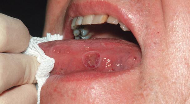 癌 初期 舌
